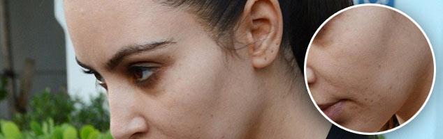 Kim Kardashian Has Acne Issues? Really?